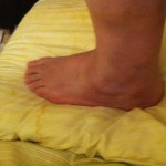 left side of foot